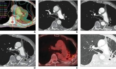 Pulmonary Artery Thrombosis a Complication of Radiation Therapy