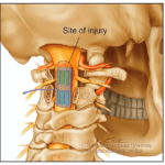 $13.48M Awarded to Develop Implantable Ultrasound Devices for Spinal Cord Injury