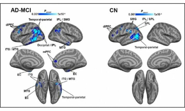 MRI and PET Reveal Link Between Blood Flow and Tau Accumulation in Alzheimer's Patients