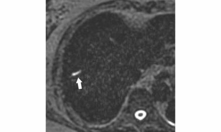 MRI Reveals Long-Term Prognosis Predictors for Colorectal Liver Metastasis