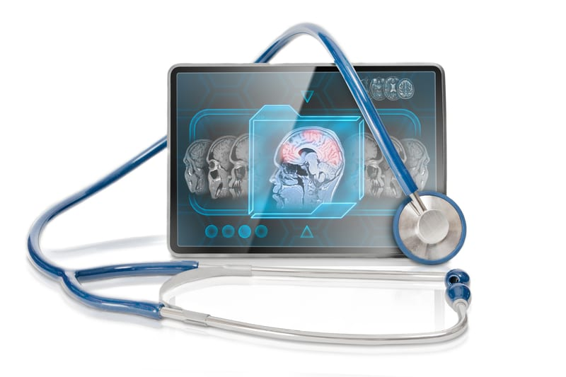 New Study Exposes Potential Expansion Barriers to Functional MRI for Medicare Patients