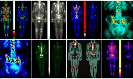 Adding Advanced PET Scans to Radiation Treatment Plans for Prostate Cancer Increases Failure-Free Survival Rates