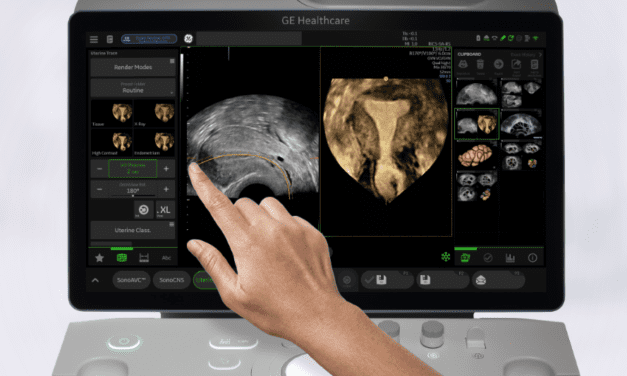 GE Healthcare UNveils AI-Enabled Ultrasound System
