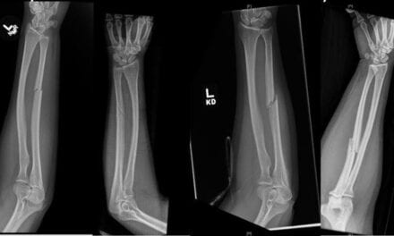 Forearm Fractures May Signal Intimate Partner Violence