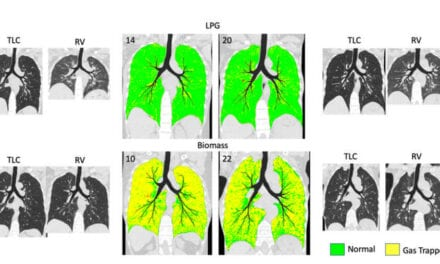 CT Shows How Cooking with Wood May Damage Lungs