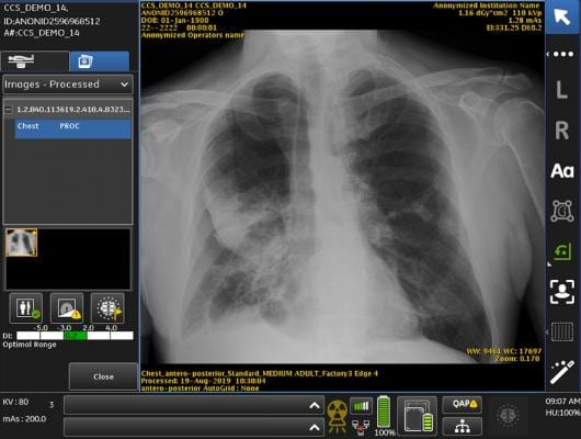 GE Healthcare Debuts X-ray AI to Help Assess Endotracheal Tube Placement for COVID-19 Patients