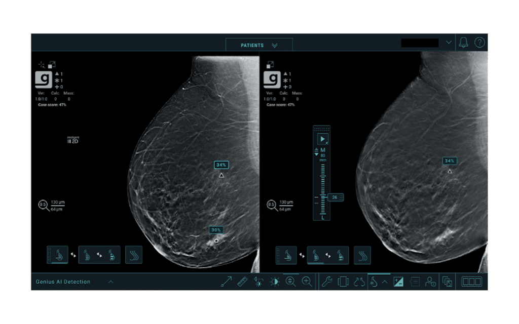 Hologic Receives FDA Clearance for Genius AI Detection