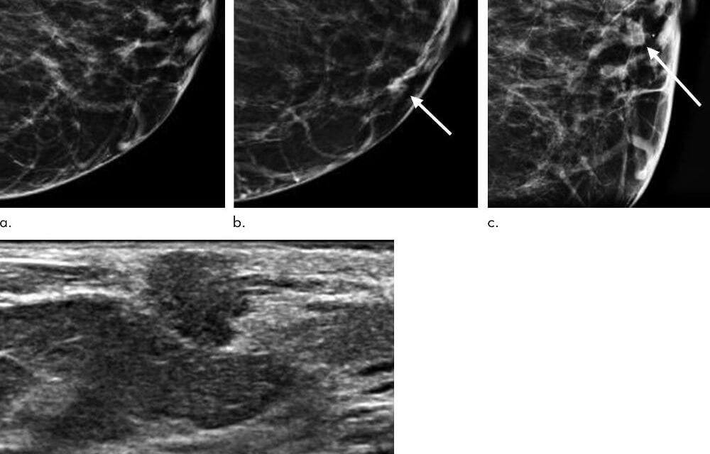 Digital Breast Tomosynthesis Improves Invasive Cancer Detection