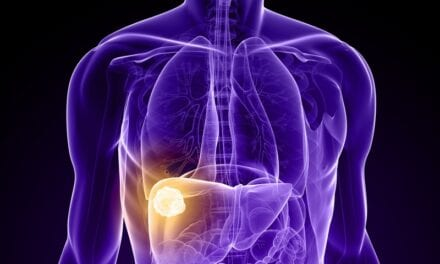Microbubbles May Improve Effectiveness of Radiation Therapy in Patients with Liver Cancer