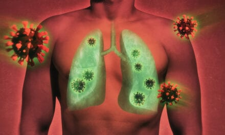 Lung Ultrasound Could Help Determine COVID-19 Outcome