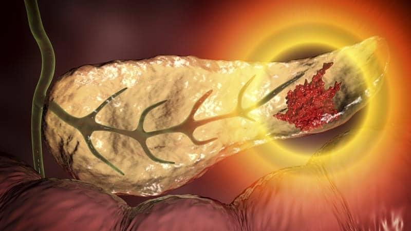 Imaging Parameters, Tumor Metrics Predict Pathologic Response Prior to Pancreatic Cancer Resection
