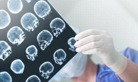 Bedside EEG Test Can Aid Prognosis in Unresponsive Brain Injury Patients