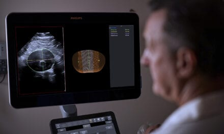 Philips Integrates 3D Ultrasound with Software for Surveillance of Abdominal Aortic Aneurysms