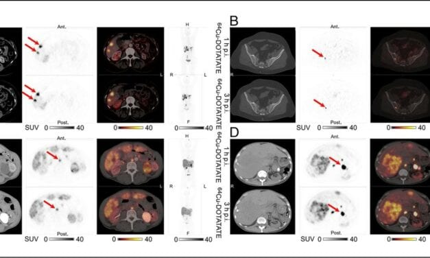 Expanded PET Imaging Time Window Adds Convenience and Flexibility for Neuroendocrine Tumor Patients
