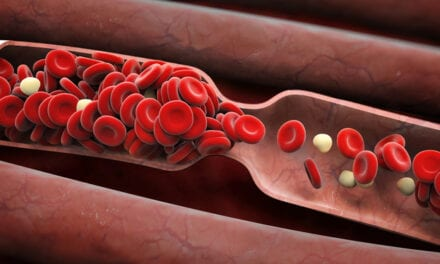 Nanodroplets and Ultrasound 'Drills' Prove Effective at Tackling Tough Blood Clots