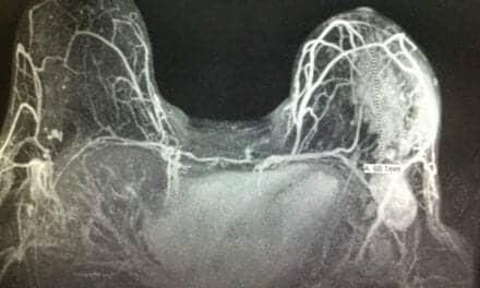 New Suspicious Lesions Found on Breast MRI in Neoadjuvant Therapy
