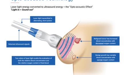 FDA Approves Seno Medical's Breast Cancer Diagnostic Technology