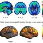 Seasonal Variation in Daylight Influences Brain Function