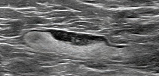COVID-19 Vaccination Axillary Adenopathy Detected During Breast Imaging