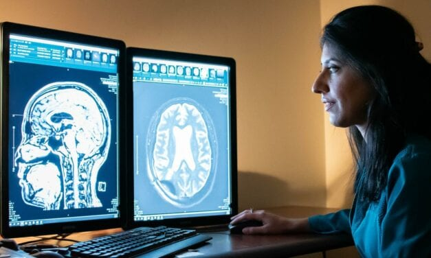 New Radiology Research Shows Promising Results for Focused Ultrasound Treatment of Alzheimer's