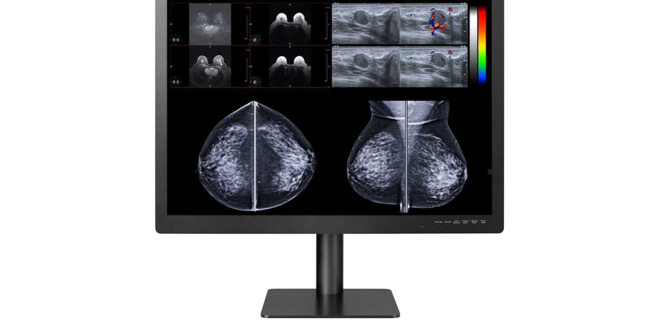 Double Black Imaging Expands PACS and Breast Imaging Display Solutions with 12MP Display