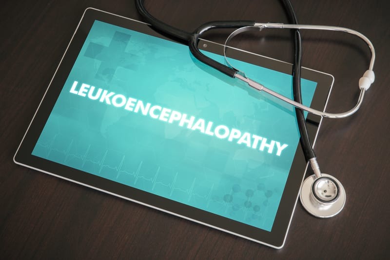 COVID-19 Associated with Leukoencephalopathy on Brain MRI
