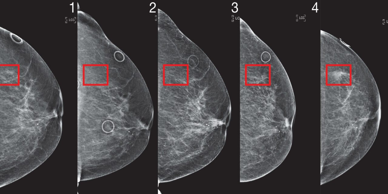 Mammogram-based Breast Cancer Risk Model Could Lead to Better Screening Guidelines