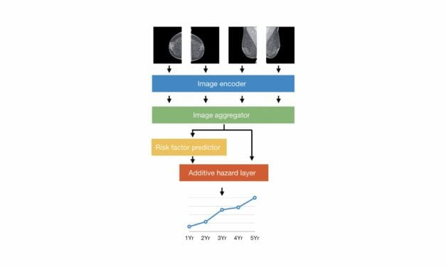 Mammography-Based AI Model May Predict Breast Cancer Risk