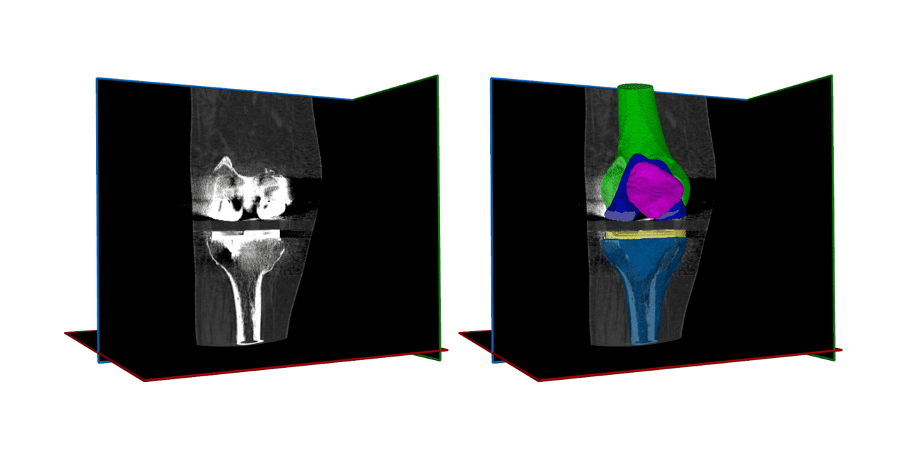 RSIP Vision Unveils Metal Implant and Joint Segmentation Tool