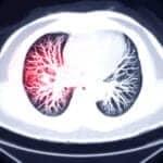 FDA Clears Aidoc AI Technology for Triage of Incidental Pulmonary Embolism