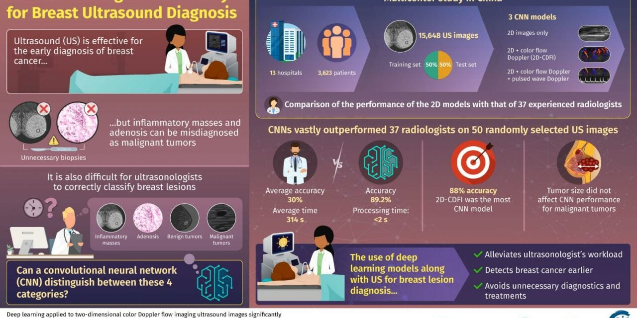 Artificial Intelligence Improves Accuracy of Breast Ultrasound Diagnoses