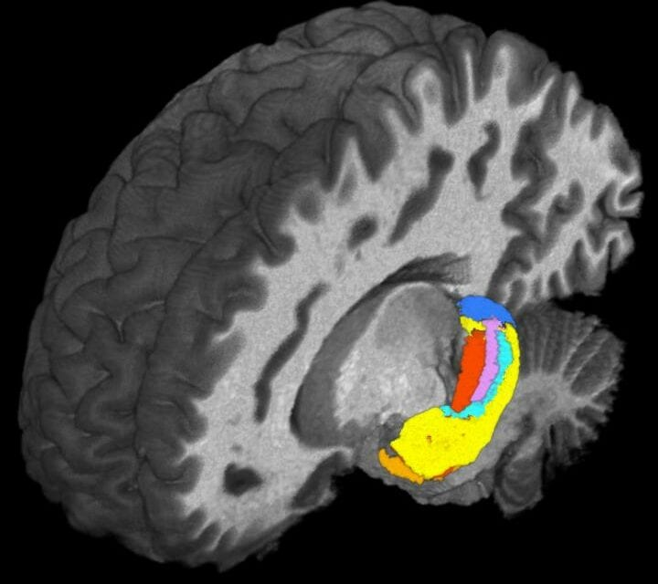 Ultra-High Field MRI Detects Differences in Brain's 'Hippocampus'