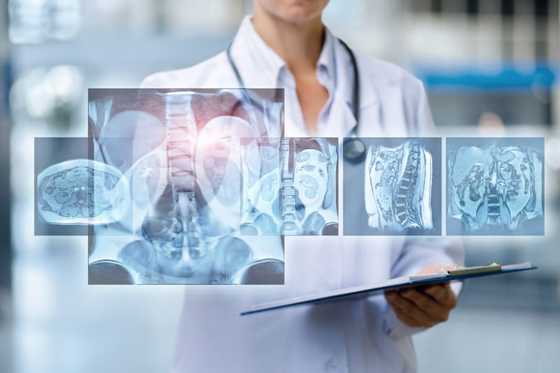 ACR Launches National Clinical Imaging Research Registry