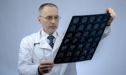 MRI Shows Brain Changes Following TBIs Share Similarities with Alzheimer's Disease