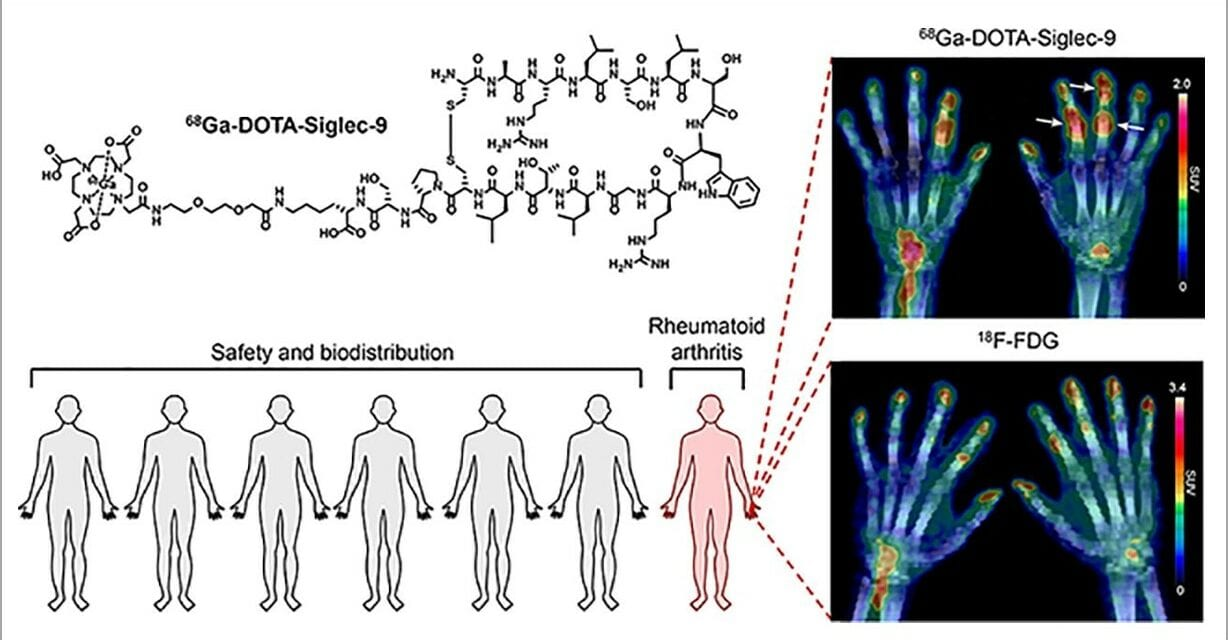 New Radiotracer Deemed Safe and Effective for Imaging Early Rheumatoid Arthritis
