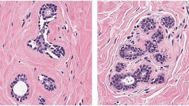 Grand Challenge Research Harnesses AI to Fight Breast Cancer