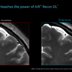 U.S. FDA Grants 510(k) Clearance to Deep Learning Technology on GE's Signa 7.0T MRI Scanner