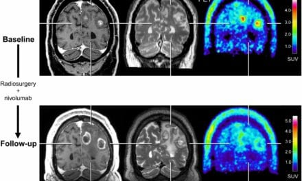 With Advent of New Treatments, PET Imaging Adds Valuable Information to Brain Metastasis Monitoring