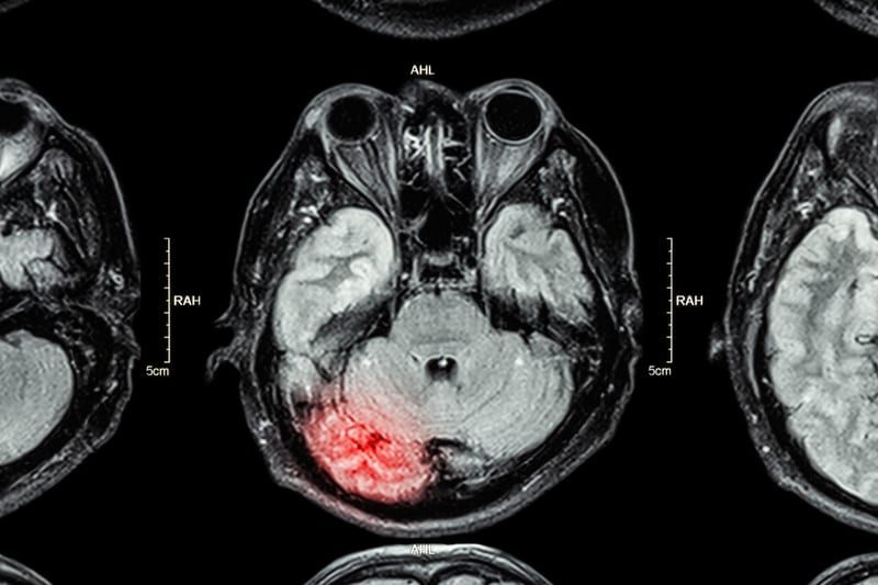 Damage to White Matter Is Linked to Worse Cognitive Outcomes After Brain Injury