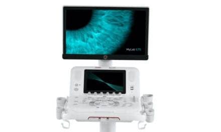 Esaote Debuts MyLab X75 Ultrasound System