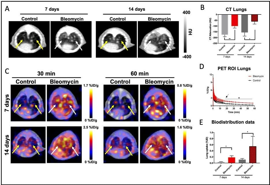 PET Radiotracer Effective for Detection and Assessment of Lung Fibrosis