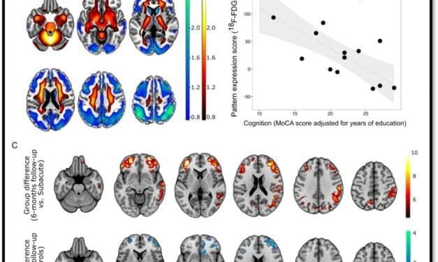 PET Imaging Measures Cognitive Impairment in COVID-19 Patients