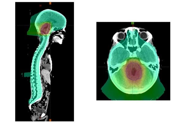 Study Sheds Light on Treatment Options for Devastating Childhood Brain Cancer