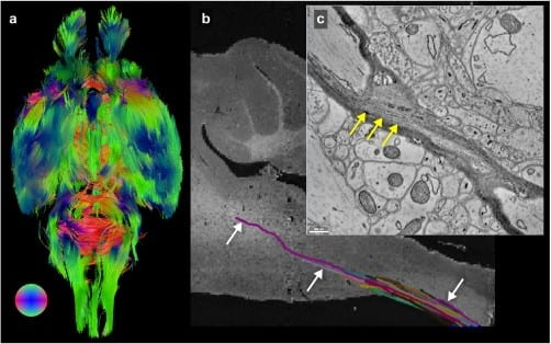 Mouse Brain Imaged from the Microscopic to the Macroscopic Level