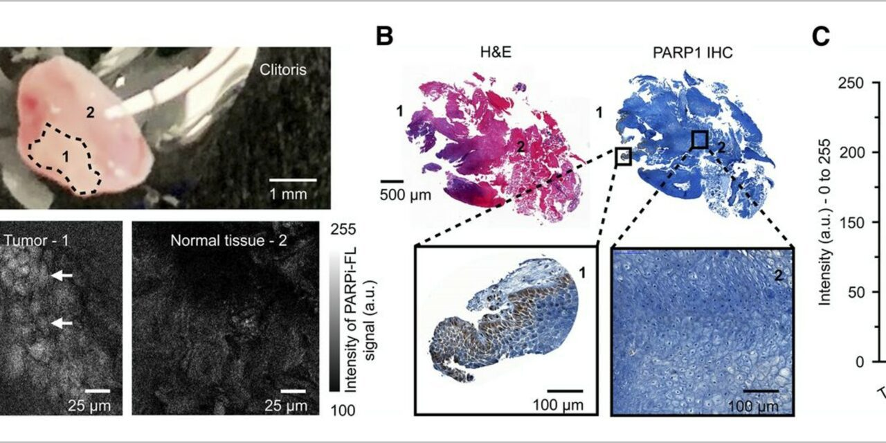 Topical Molecular Imaging Tracer Enables Real-Time Detection of Cervical Cancer