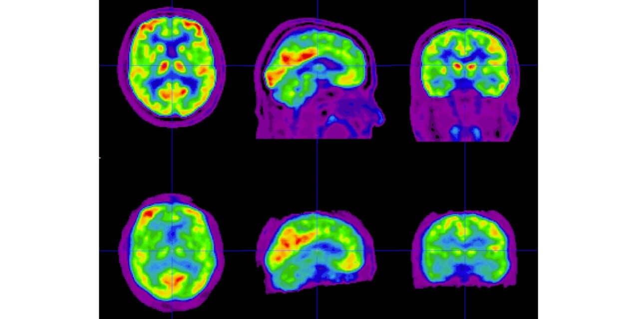Positrigo: Ultracompact Brain PET Device Study Successful