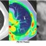 SNMMI: Total-Body PET Imaging Exceeds Industry Standards