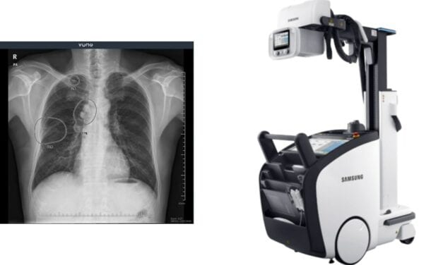 VUNO Inks Deal with Samsung Electronics to Embed AI-Powered Algorithms in Samsung's X-ray System