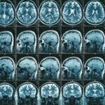 Researchers Label More Than 100,000 MRI Exams in Under 30 Minutes