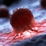 New Imaging Method Tracks Cancer Treatment Efficacy in Preclinical Studies